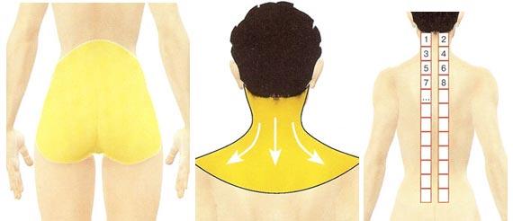 Que hacer al dolor en el cuello a la derecha